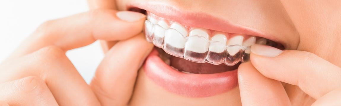 Teeth Straightening With Invisalign