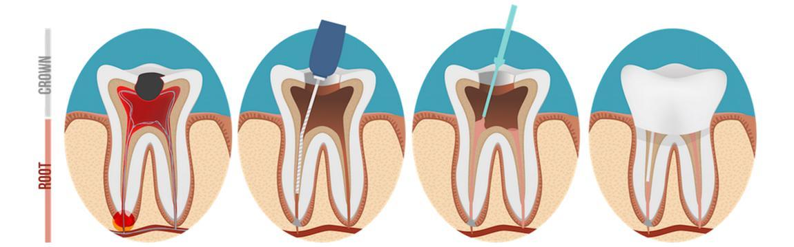 Root Canal - Root Canals